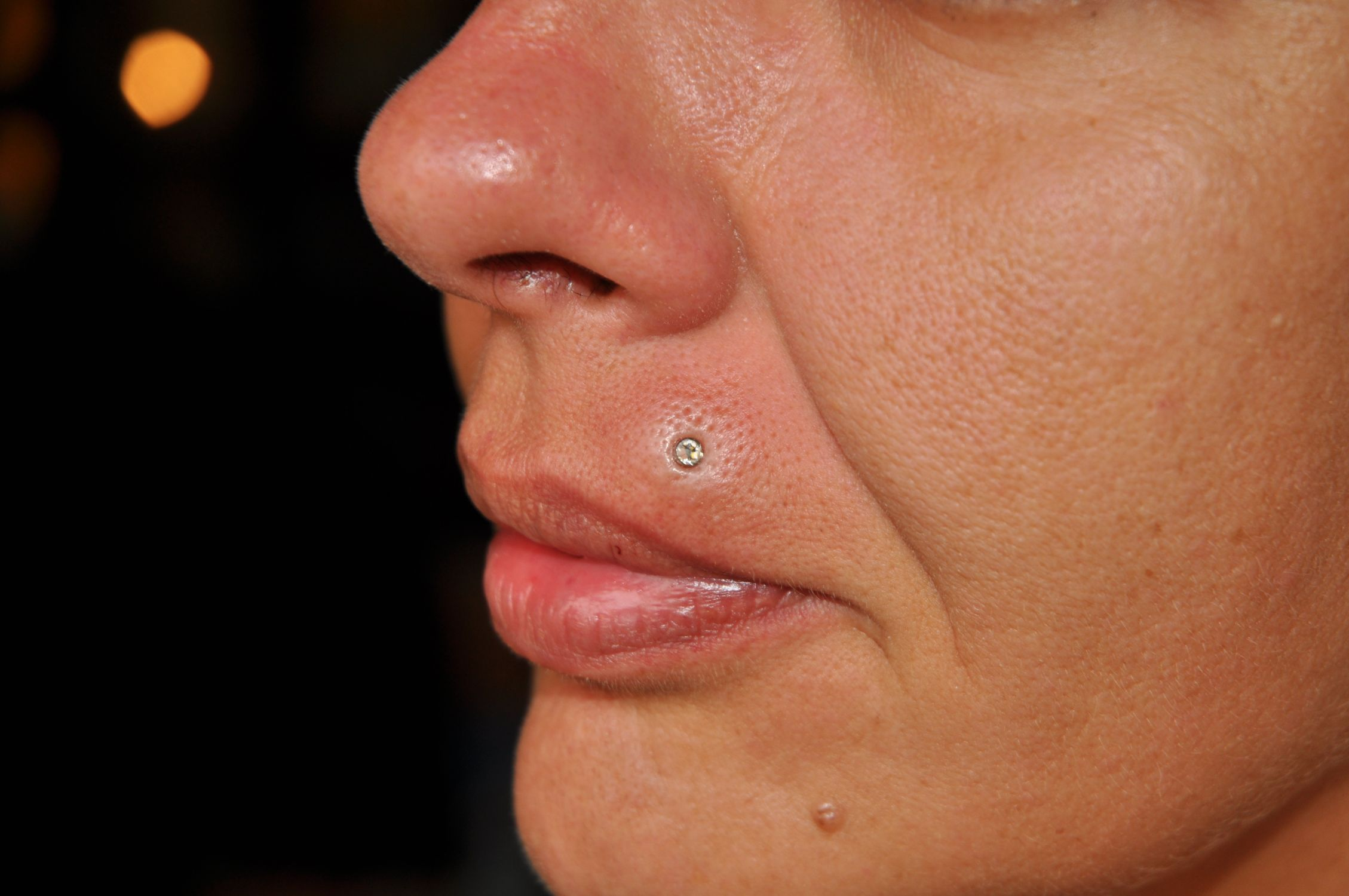 Microdermal piercing